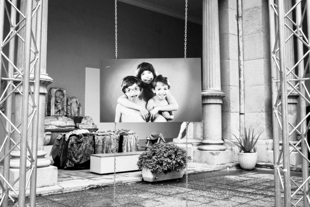 ANA CRUZ Y EL SÍNDROME DE TREACHER COLLINS  #cuarto13